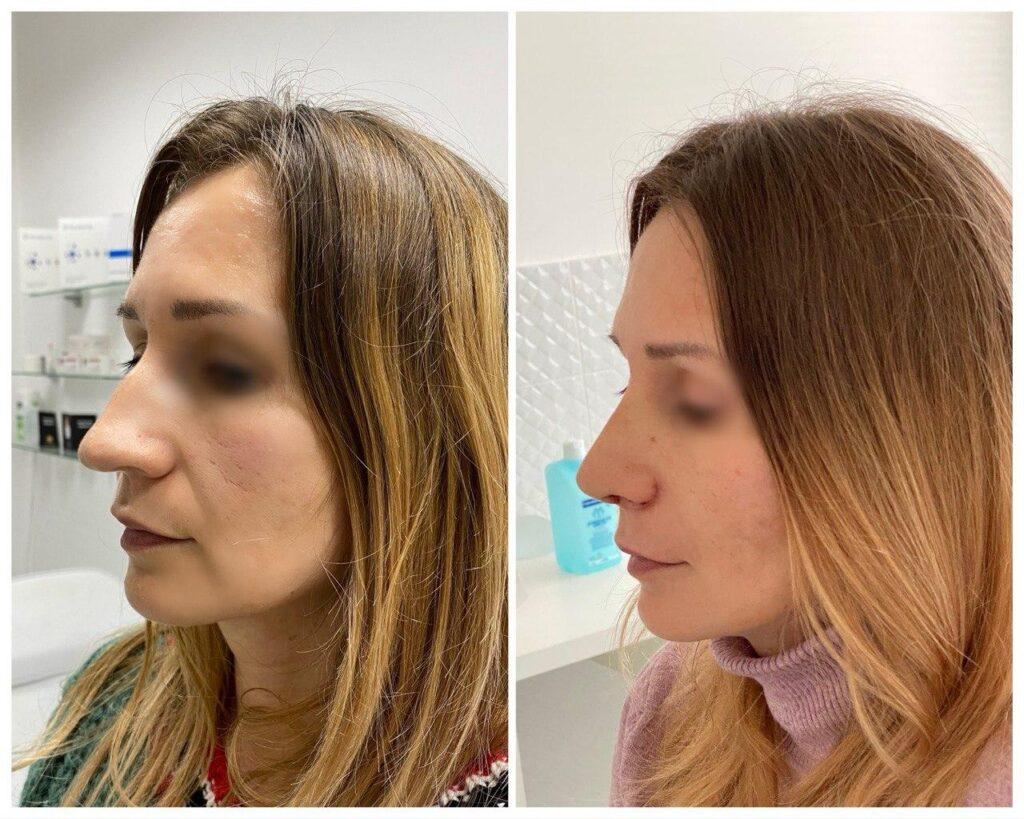 результат прластика носа киев