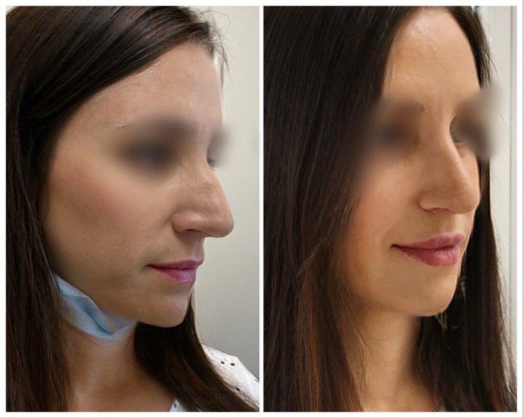 пластика носа лучший хирург украина